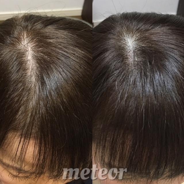 産後脱毛など 女性の前髪の薄毛、伸びない前髪はボリューム