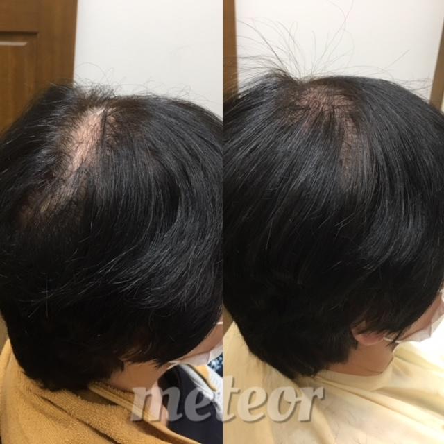地肌が透ける・薄毛・ボリューム不足。髪を気にしないで過ごして